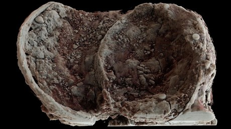Iron Age cauldron discovered at Glenfield Park. ©University of Leicester