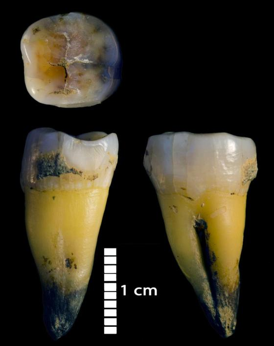 The molar of the male Homo sapiens, which lived about 45,000 years ago, found in the Bacho Kiro cave in Bulgaria, and which gave DNA that revealed new information about some of the earliest members of our species to hike to Europe, is shown in three views undated image with brochures.