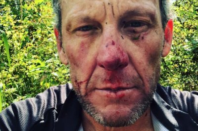Look: Lance Armstrong bloodies face after Colorado cycling crash Lance Armstrong takes tumble during Colorado cycling crash scrapes face