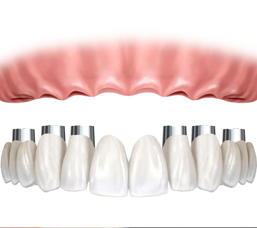 odontologia-villa-madero-la-matanza-protesis-fijas-001