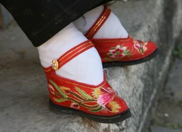 photo of bound feet
