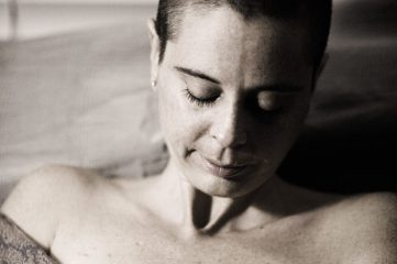 photo of woman showing her mastectomy scar