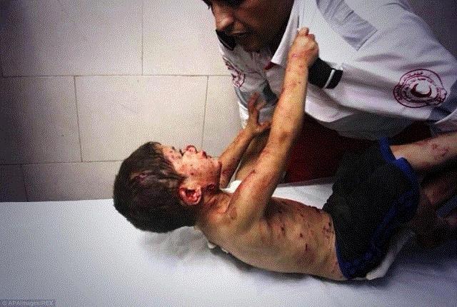 Boy injured in an Israeli strike clinging to a medic at al-Shifa hospital - Ezz al-Zanoun - APA images