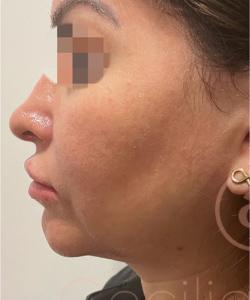 hilos-tensores-antes-del-tratamiento-2