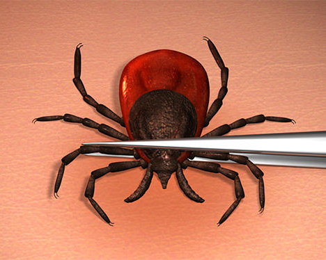 You've been bitten by a tick, now what? Lyme talk