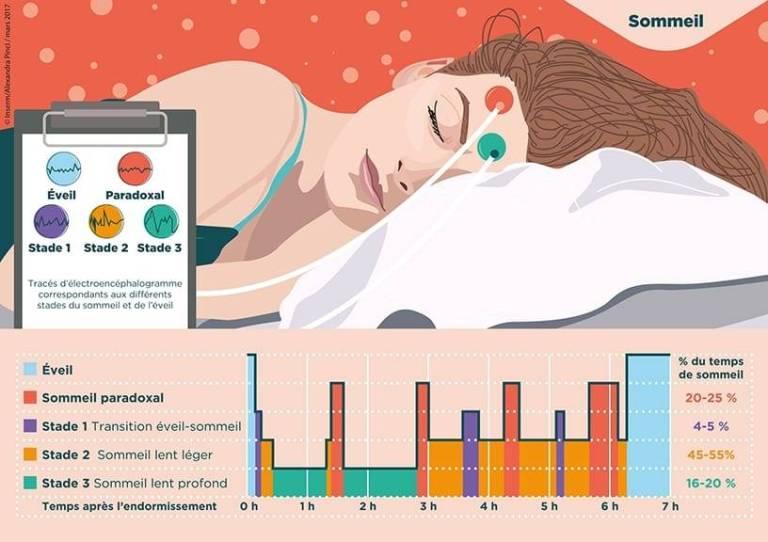 Illustration des stades du sommeil