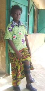 - ZONGO Esther Grâce en classe du CM2 a bénéficié d'une prothèse orthopédique qui l'aide à se déplacer facilement.