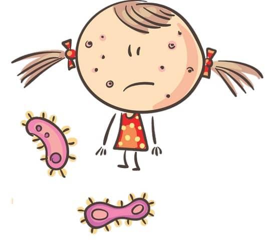 Los virus en el cole