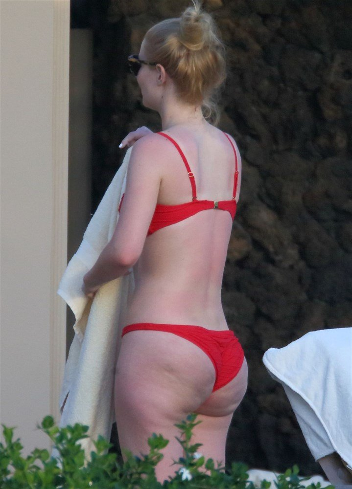 Iggy Azalea's Butt Implants In A Bikini