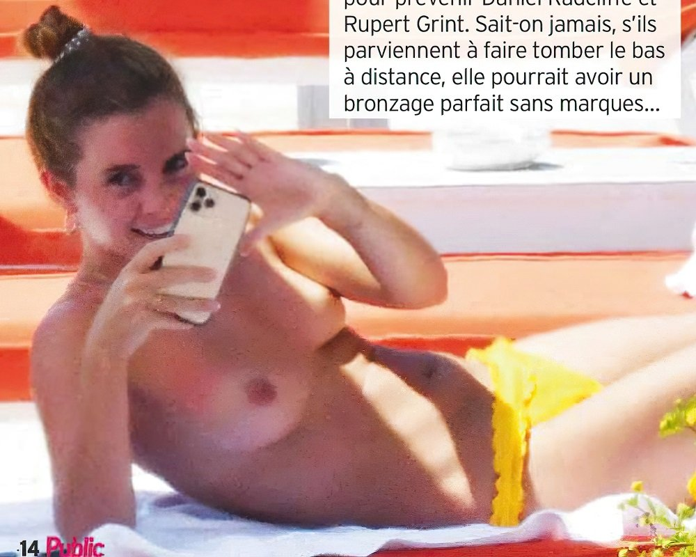 Emma Watson Topless Nude Sunbathing Photos Published In France