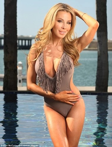 Lisa Hochstein Plastic Surgery Before And After Photos
