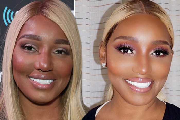 NeNe Leakes Opens Up About What Plastic Surgery She'd Still Get And What Procedures She Never Would!
