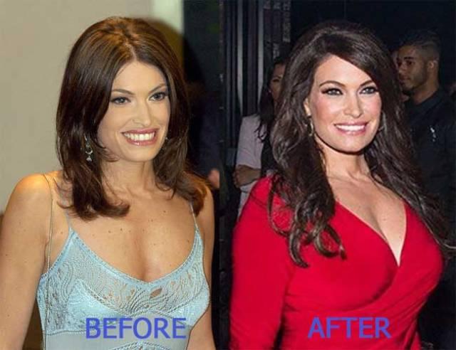 Kimberly Guilfoyle Plastic Surgery