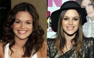 Rachel Bilson before and after nose job