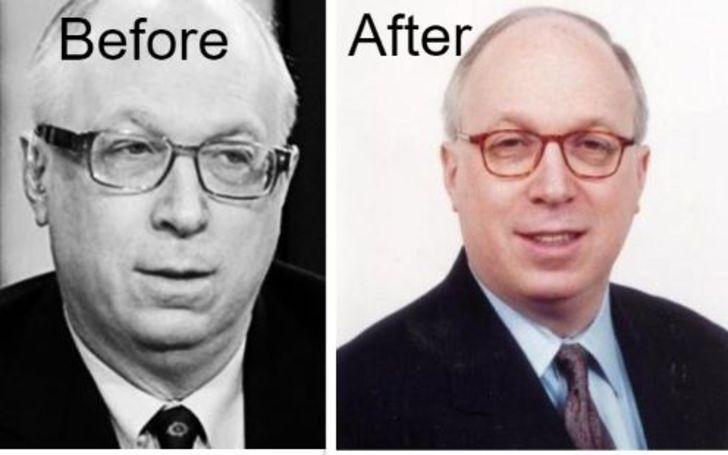 Doug Schoen Weight Loss – Before & After Comparison