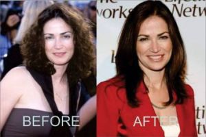 Have a look at Kim Delaney Before and After