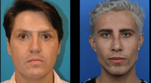 James Mack Before and After Alleged Plastic Surgery