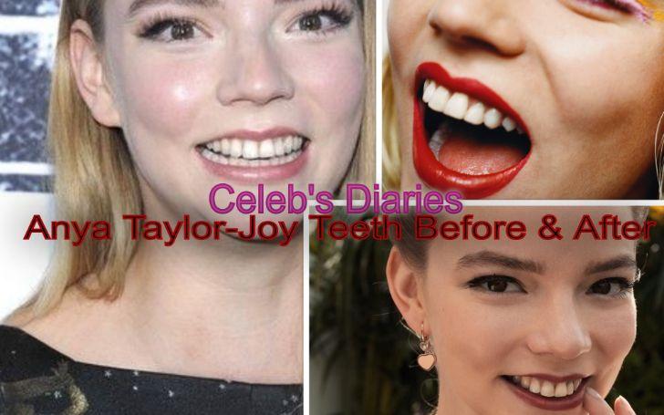 Grab All Details of Queen's Gambit Actress Anya Taylor-Joy Teeth Fix