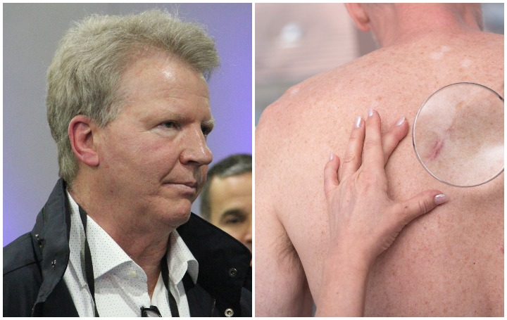 Phil Simms Plastic Surgery