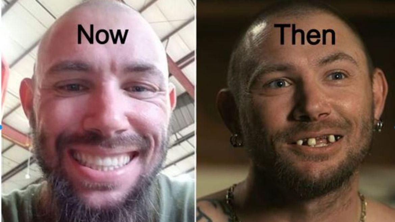 John Finlay New Teeth