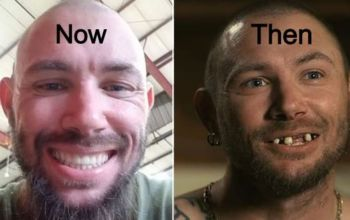 Tiger King actor John Finley before after teeth