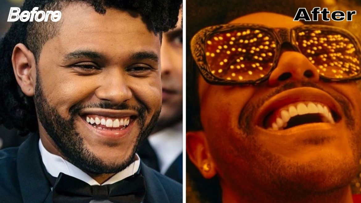 What Happened to The Weeknd Teeth – Before & After Comparison