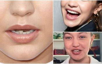 Super Model Gigi Hadid Teeth Transformation and Plastic Surgery