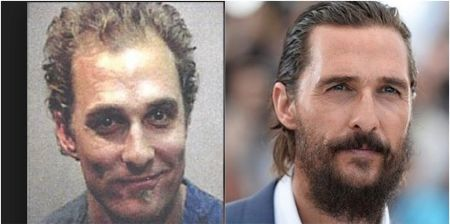 Matthew McConaughey's hair before and after hair transplant
