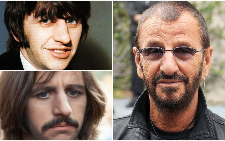 Ringo Starr Plastic Surgery