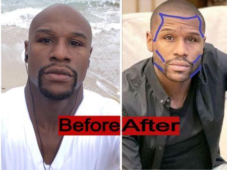 Boxer Floyd Mayweather Beard Transplant