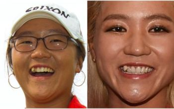 Golf Player Lydia Ko Teeth Fix, Veneers, Whitening, Fake or Real