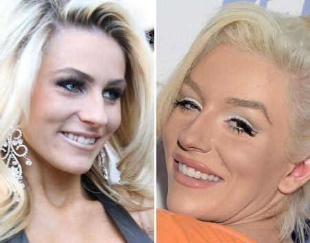 Courtney Stodden Teeth Comparison