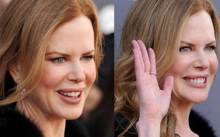 Every Details About Nicole Kidman's Plastic Surgery