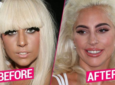 The truth behind the Lady Gaga Plastic Surgery