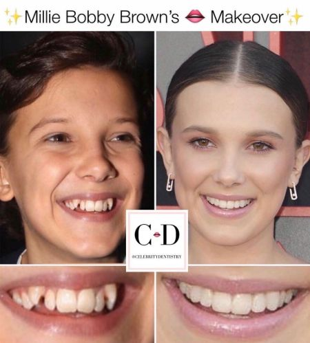 Millie Bobby Brown teeth fix Before and After Snippet