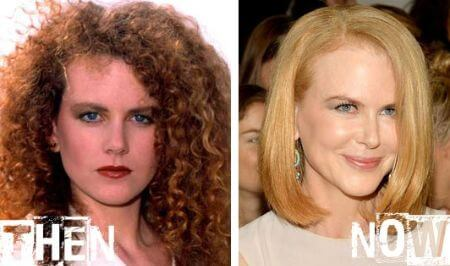 The snippet of Nicole Kidman's Before and After Botox implants