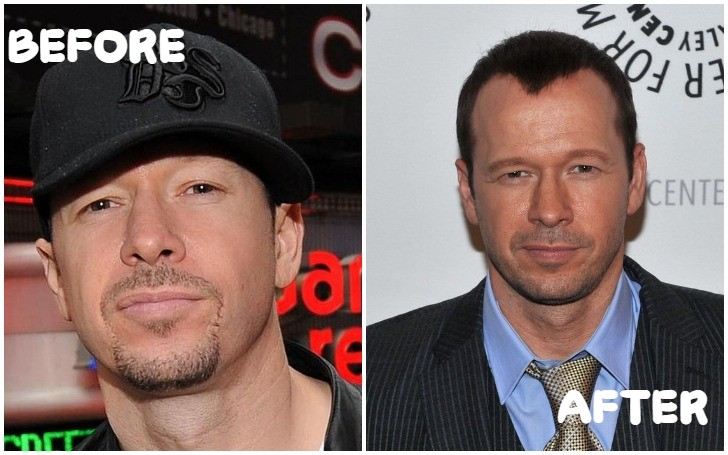 Donnie Wahlberg Plastic Surgery Includes Browlift, Facial Fillers and Tummy Tuck!!!
