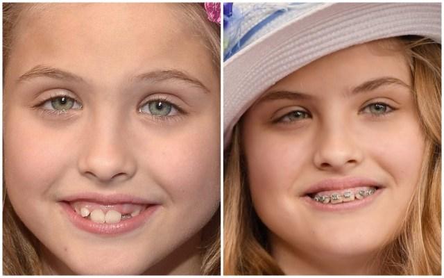Dannielynn Birkhead before and after teeth