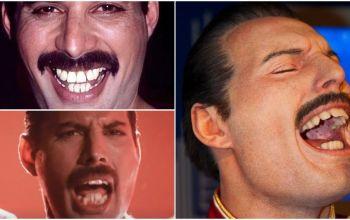 Queen's vocalist freddie mercury teeth fix, range, singing and more.