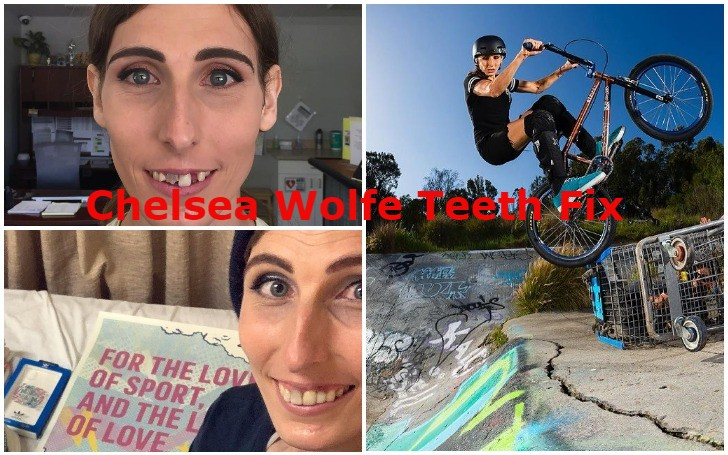 Has the BMX rider Chelsea Wolfe Fixed Teeth?