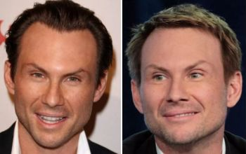 Christian Slater Plastic Surgery- Facelift, Botox, Injections, Hair Transplant