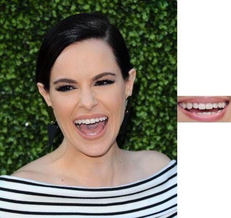 Emily Hampshire Teeth (2) (1)