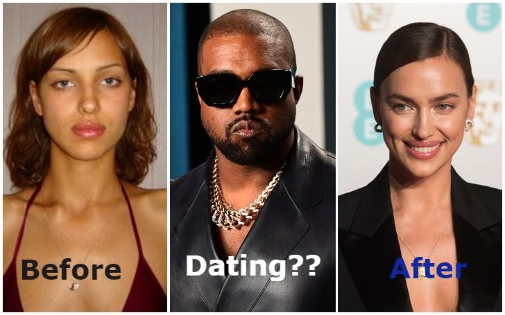 Details on Irina Shayk Plastic Surgery and Dating Kanye West!