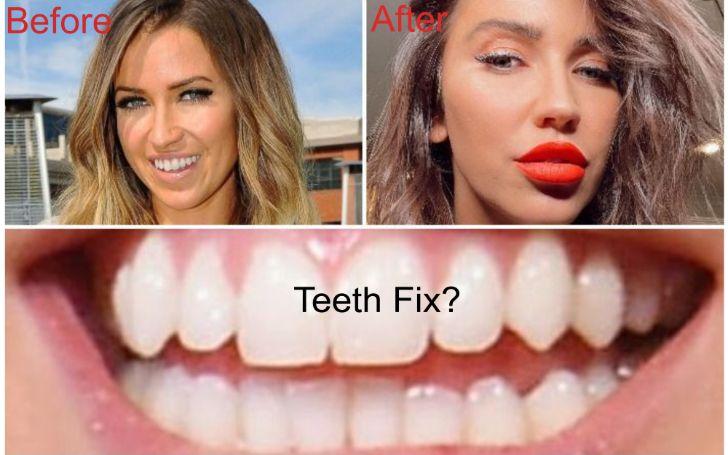 Kaitlyn Bristowe Plastic Surgery includes Teeth Fix