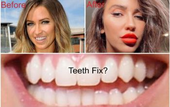 Kaitlyn Bristowe Plastic Surgery includes Teeth Fix - Lip Fillers & Botox?