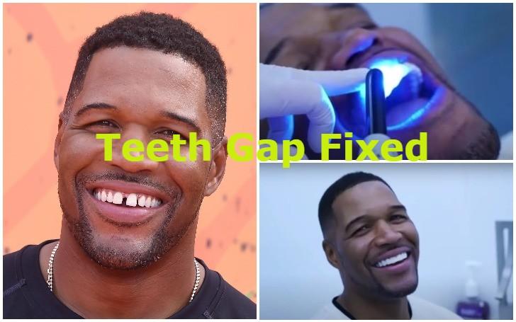 Michael Strahan Teeth Gap Fixed for April's Fool!!!
