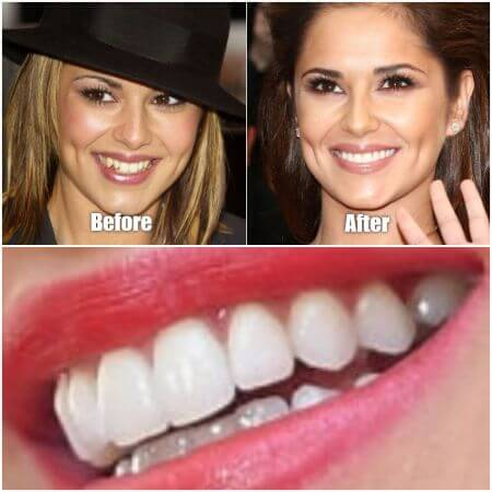 Compare the British actress Cheryl Cole teeth by yourself