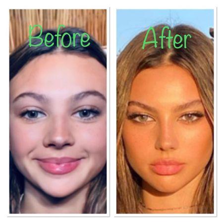 Katarina Deme TikTok Plastic Surgery