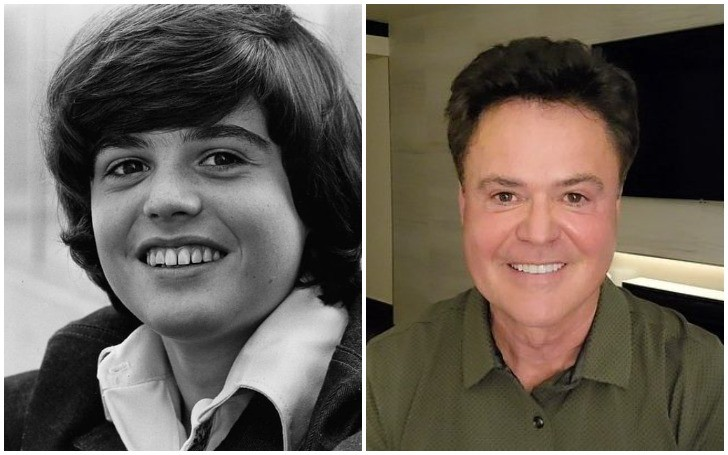 Donny Osmond Plastic Surgery- The Untold Truth!!