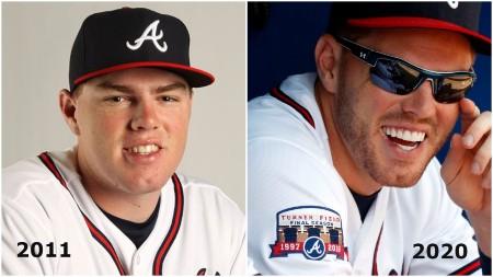 Freddie Freeman Teeth Before and After